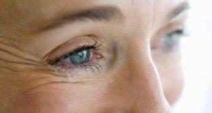 علاج التجاعيد تحت العين