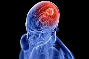 مريض بورم في دماغه