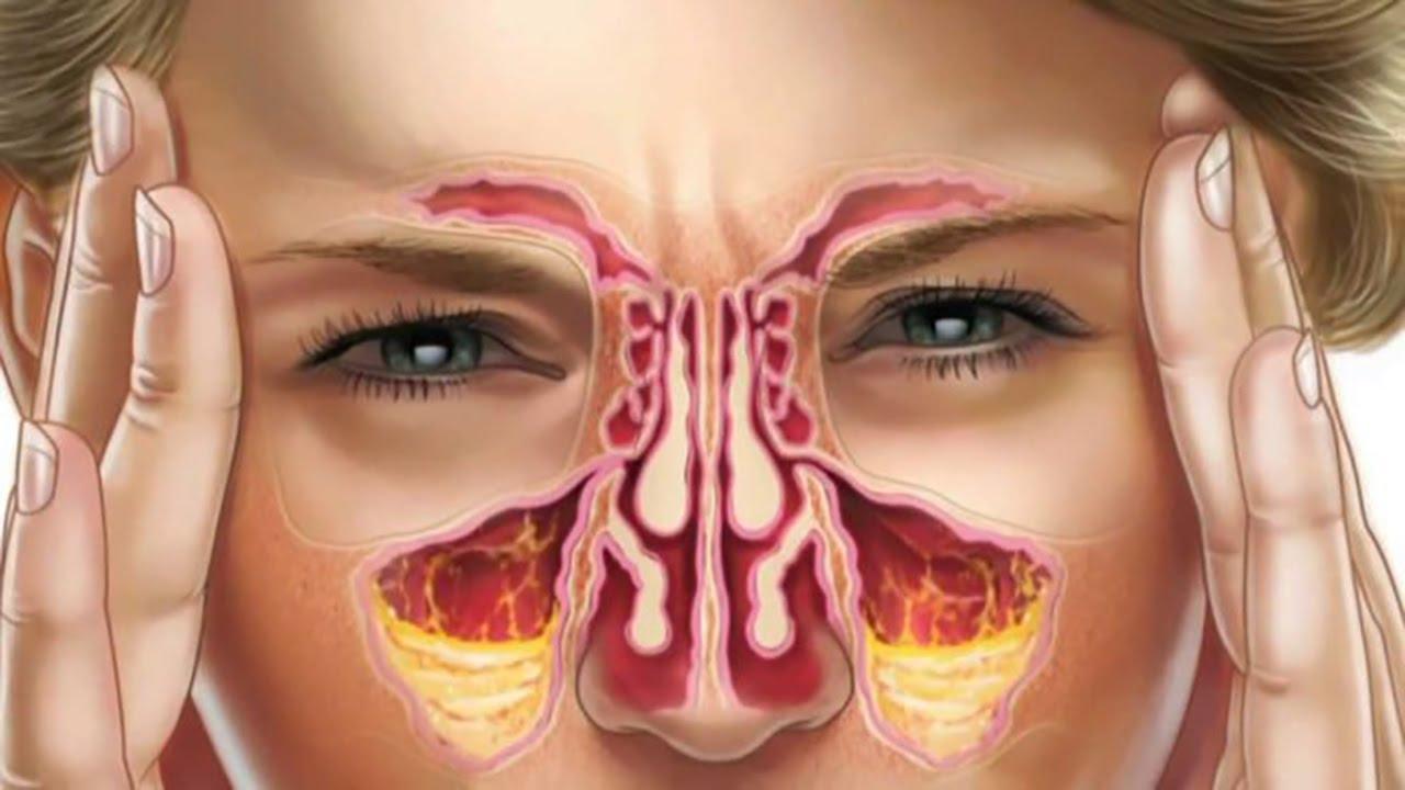 علاج إلتهاب الجيوب الأنفية
