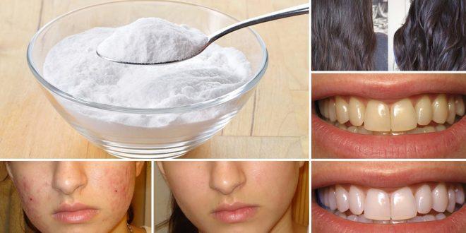 بيكربونات الصوديوم ماهي بيكربونات الصوديوم الفوائد قرحة المعدة الأضرار الجانبية