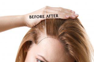 ماهو الفيتامين المسؤول عن تساقط الشعر