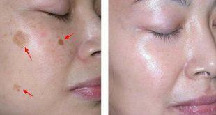 ازالة البقع من الوجه