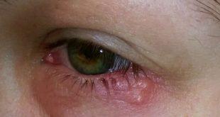 رفة لعين اليسرى