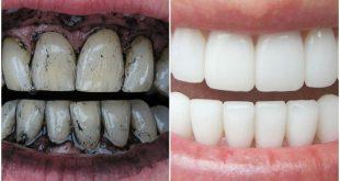وصفة لتبييض الأسنان