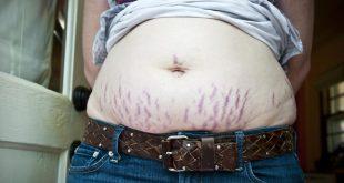 علاج تمدد الجلد