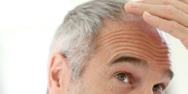 منع ظهور الشعر الابيض