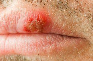 التهاب الشفة الزاوي