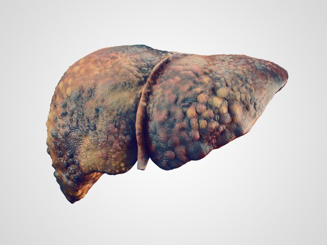 امراض الكبد من الكحول