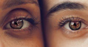 انتفاخ العيون