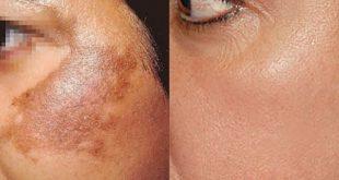 علاج بقع الوجه