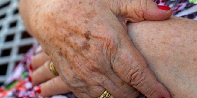 علاج البقع على اليدين