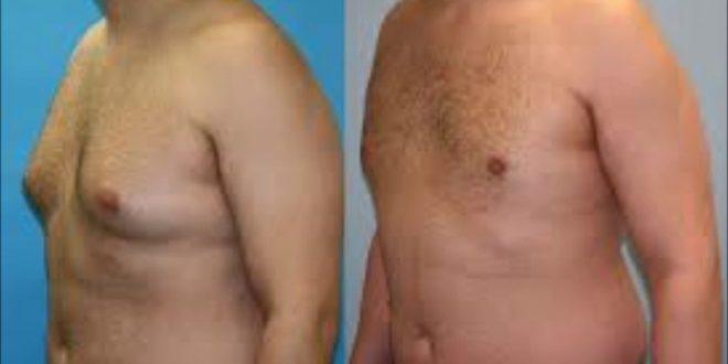 تضخم الثدي عند الرجال