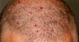 التهاب جريبات الشعر